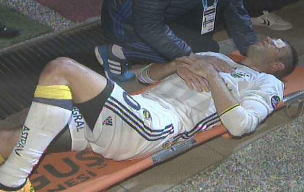 (((VIDEO))) Van Persie pudo haber perdido un ojo tras recibir un codazo